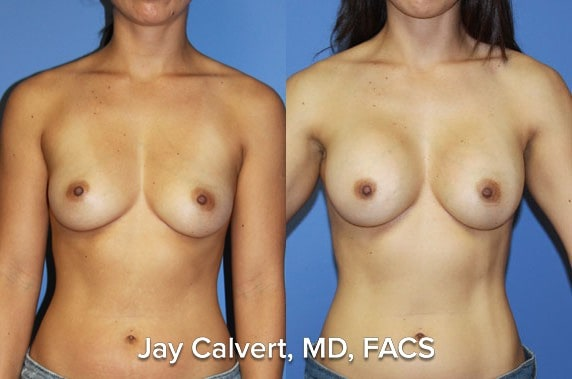 Breast augmentation patient with the ideal implants.  These are saline implants with a special construction to make them feel like silicone gel implants