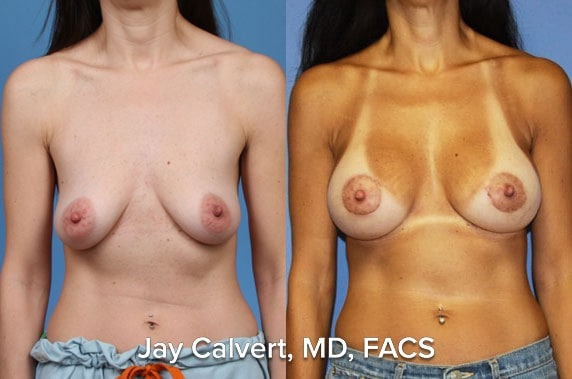boob job plastic surgeon los angeles