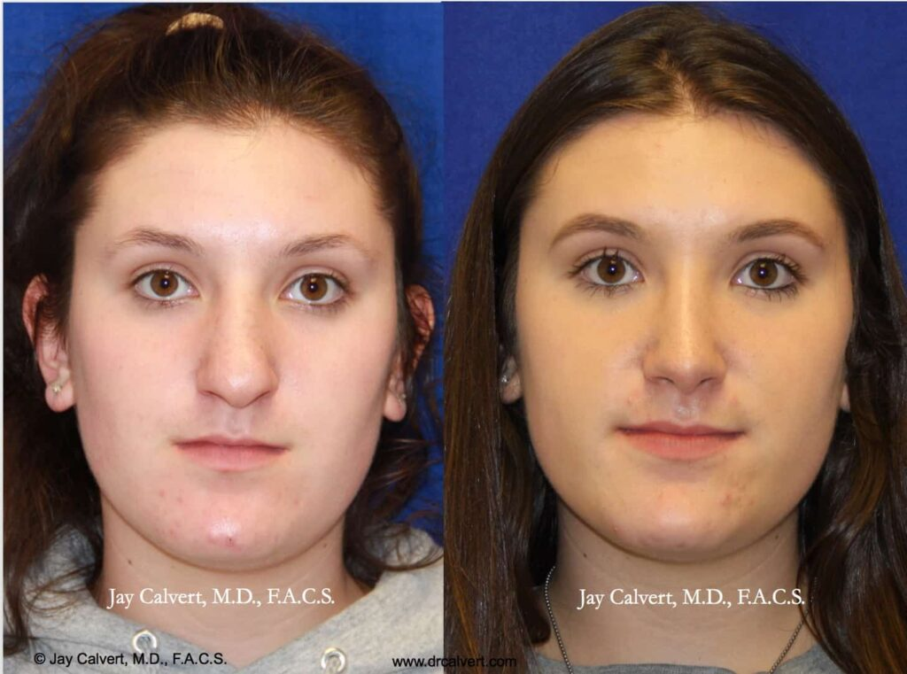 Rhinoplasty in Beverly Hills results