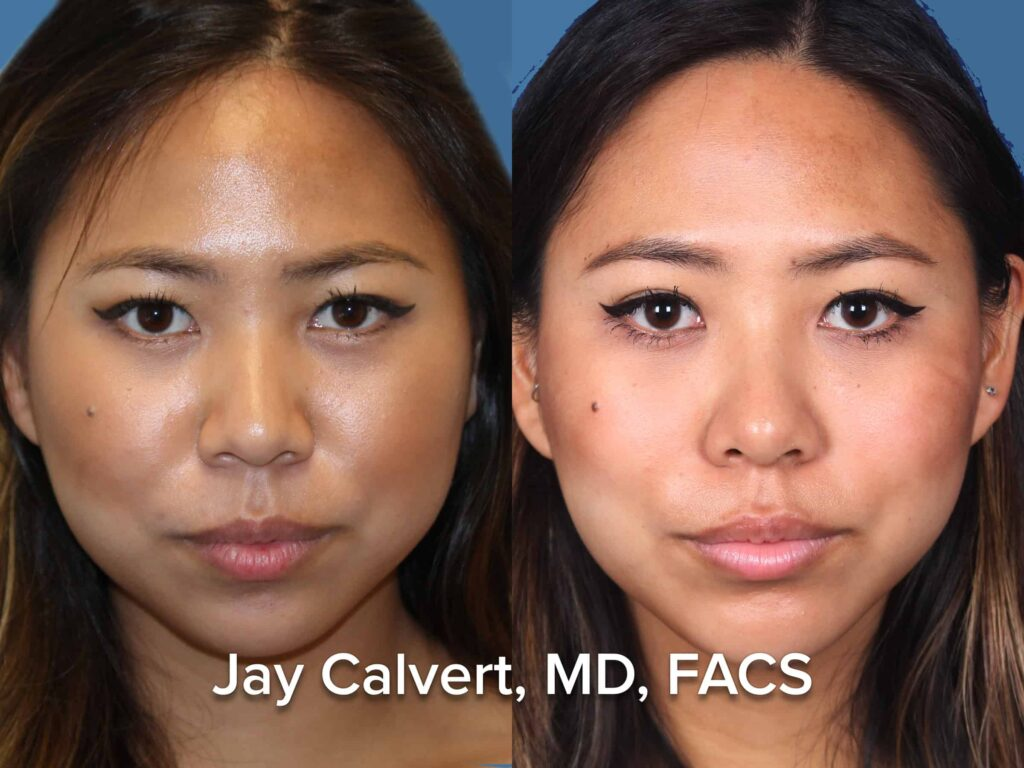 Ethnic Female Rhinoplasty Dr Calvert BH