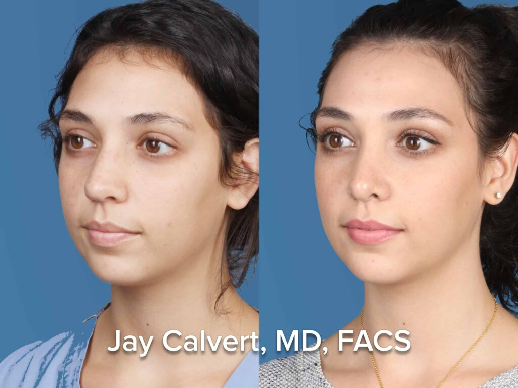 Female Rhinoplasty by Dr. Jay Calvert Los Angeles
