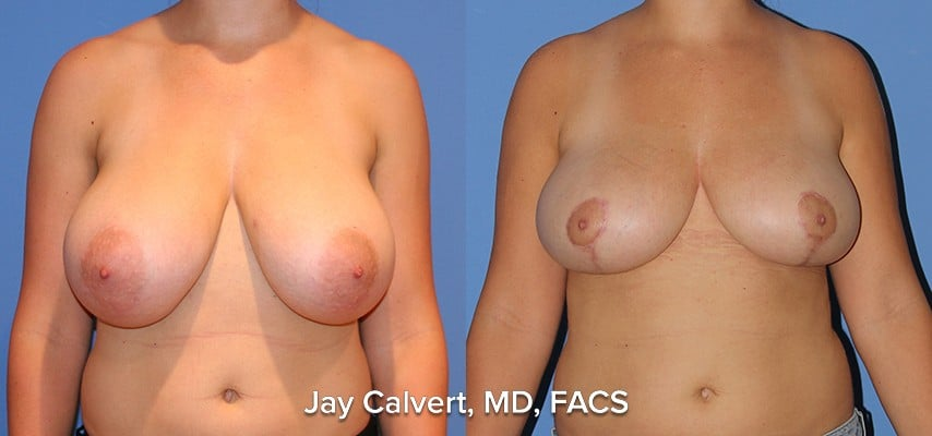 breast reduction beverly hills results