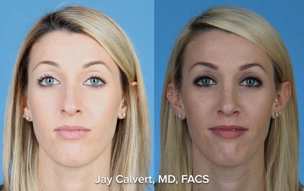 young female rhinoplasty results