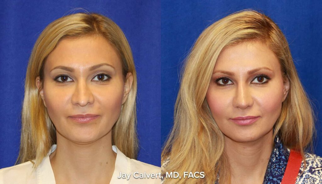 before and after photograph of a rib graft reconstructive rhinoplasty