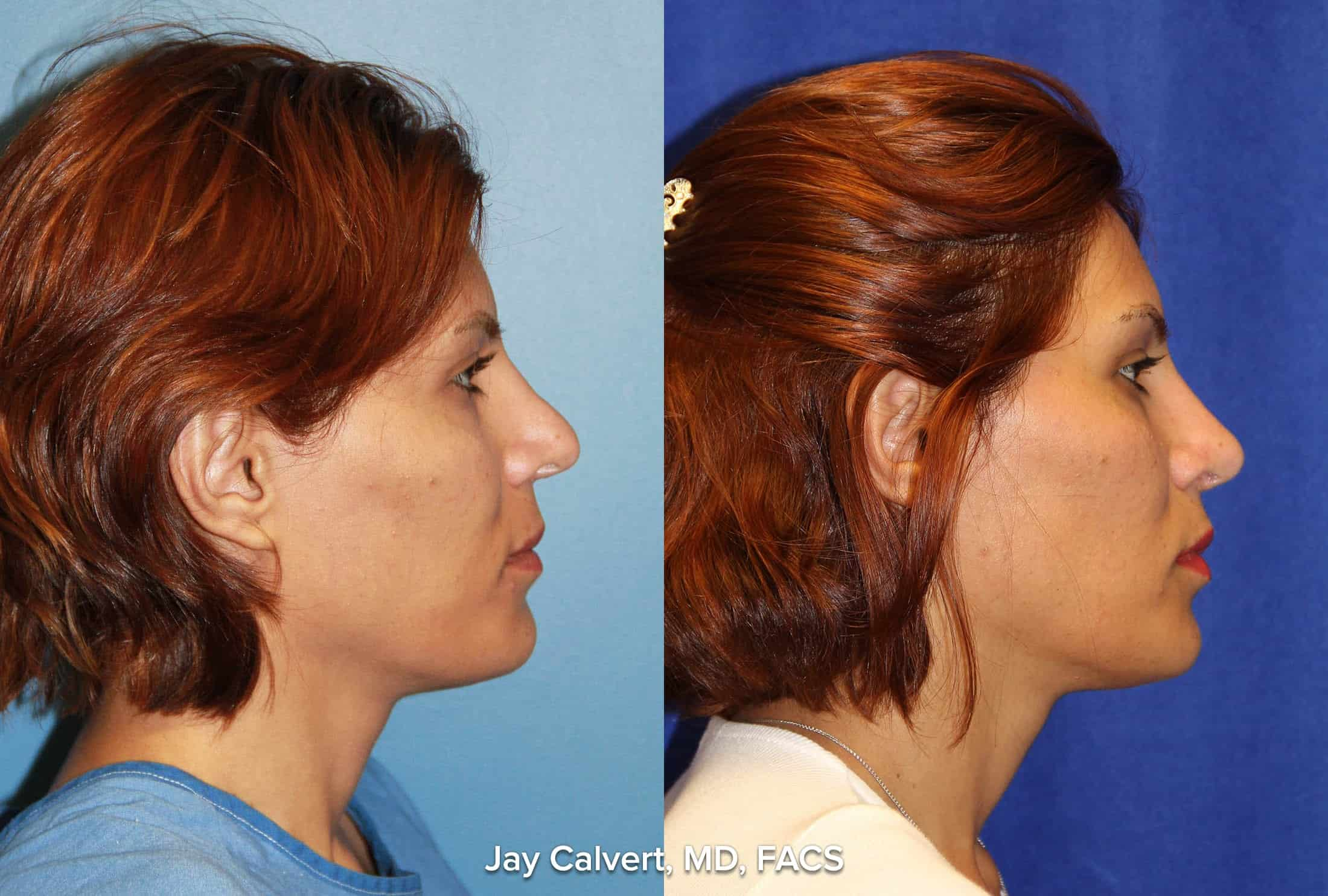 revision rhinoplasty female beverly hills