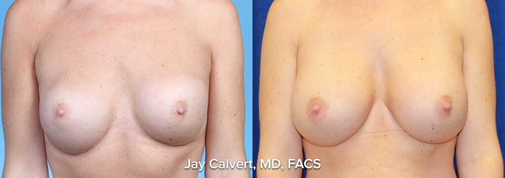 breast augmentation photo results