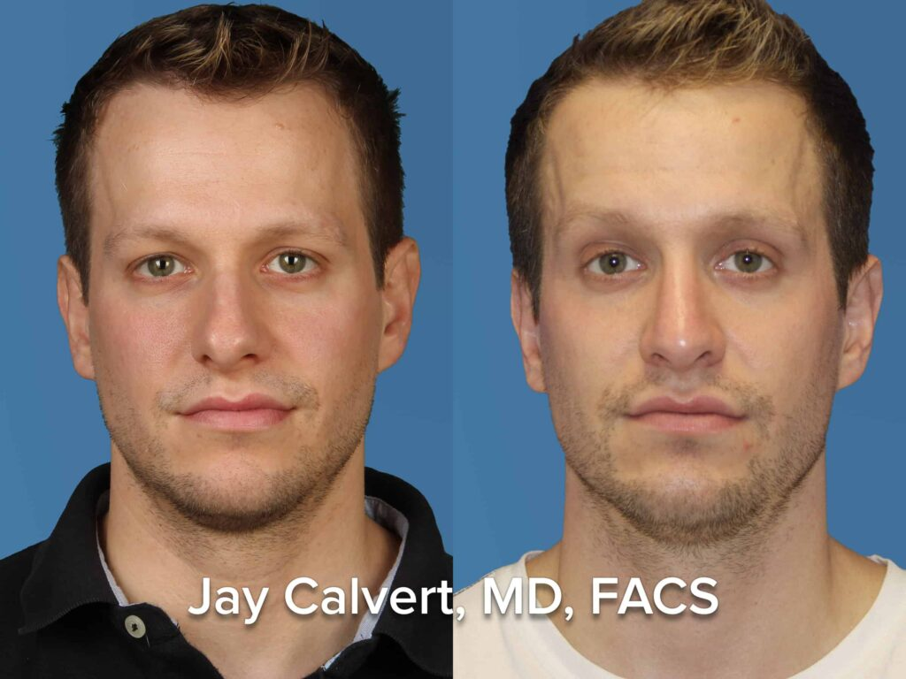 Male Revision Rhinoplasty Front View Results