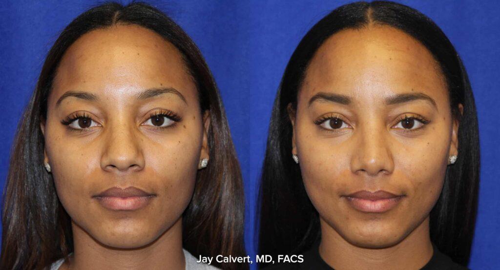 African American Patient Rhinoplasty
