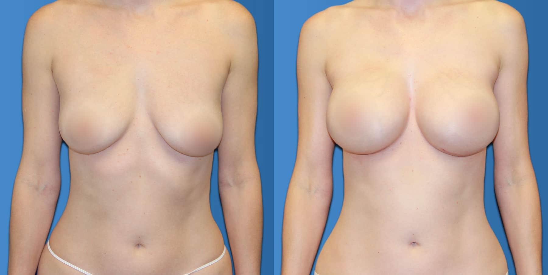 breast aug b a