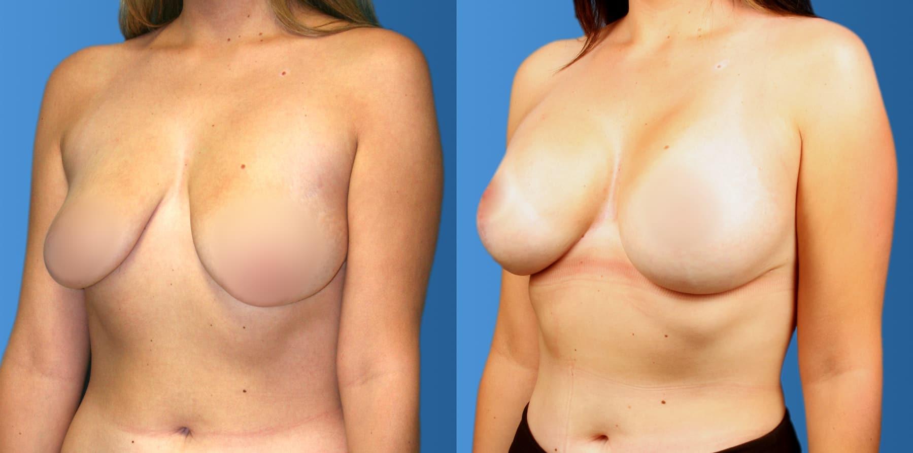 breast augmentation b a
